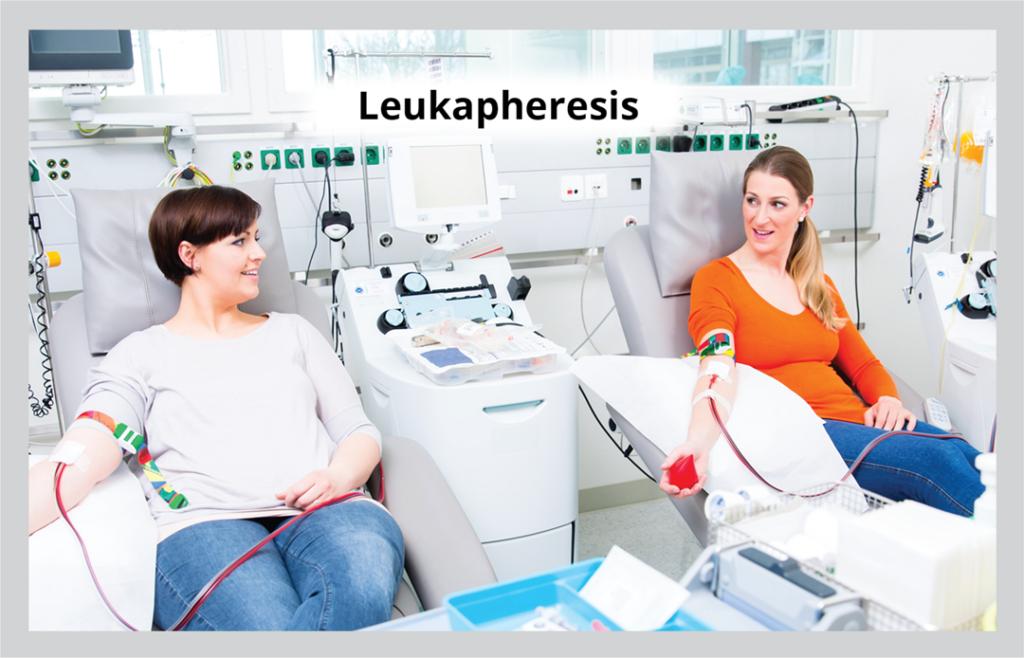Leukapheresis: using apheresis machinery to separate white blood cells from whole blood